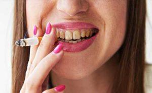 Kenapa Gigi Saya Tidak Putih Arilglow Pemutih Gigi Moden